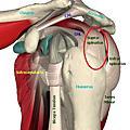 棘上肌肌腱炎