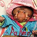 印度雙面女嬰