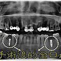 3D水雷射微創植牙(所有案例皆為何醫師完成 請同業勿轉載)