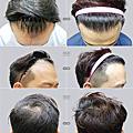 客製化植髮