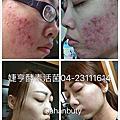 痘痘、粉刺、雀斑調理、電流、膚質調理
