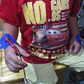 板機指電療
