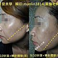 台北台中台南高雄.做臉部活膚矽藻柰米儀