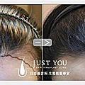 植髮術前術後