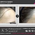 K'S_輪廓髮際線