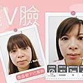 微晶瓷 晶亮瓷案例::高雄美妍醫美診所