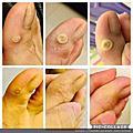 足底疣擦抹是需要耐心的痊癒照片分享
