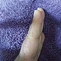 尋常手指疣皮膚較細緻容易摩擦蔓延傳染
