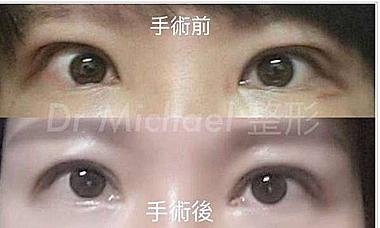 眼窩 特発 炎症 性