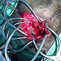 [Pinko] 髀臼關節窩骨折